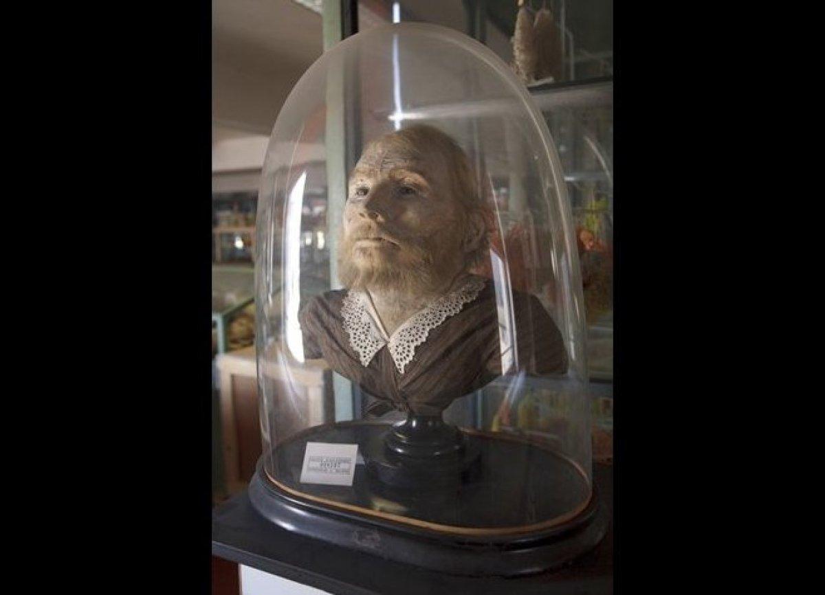 "Femme à barbe, Musée Orfila, Courtesy of Paris Descartes University © <a href=""http://www.astropop.com/"" target=""_hplink"">J"
