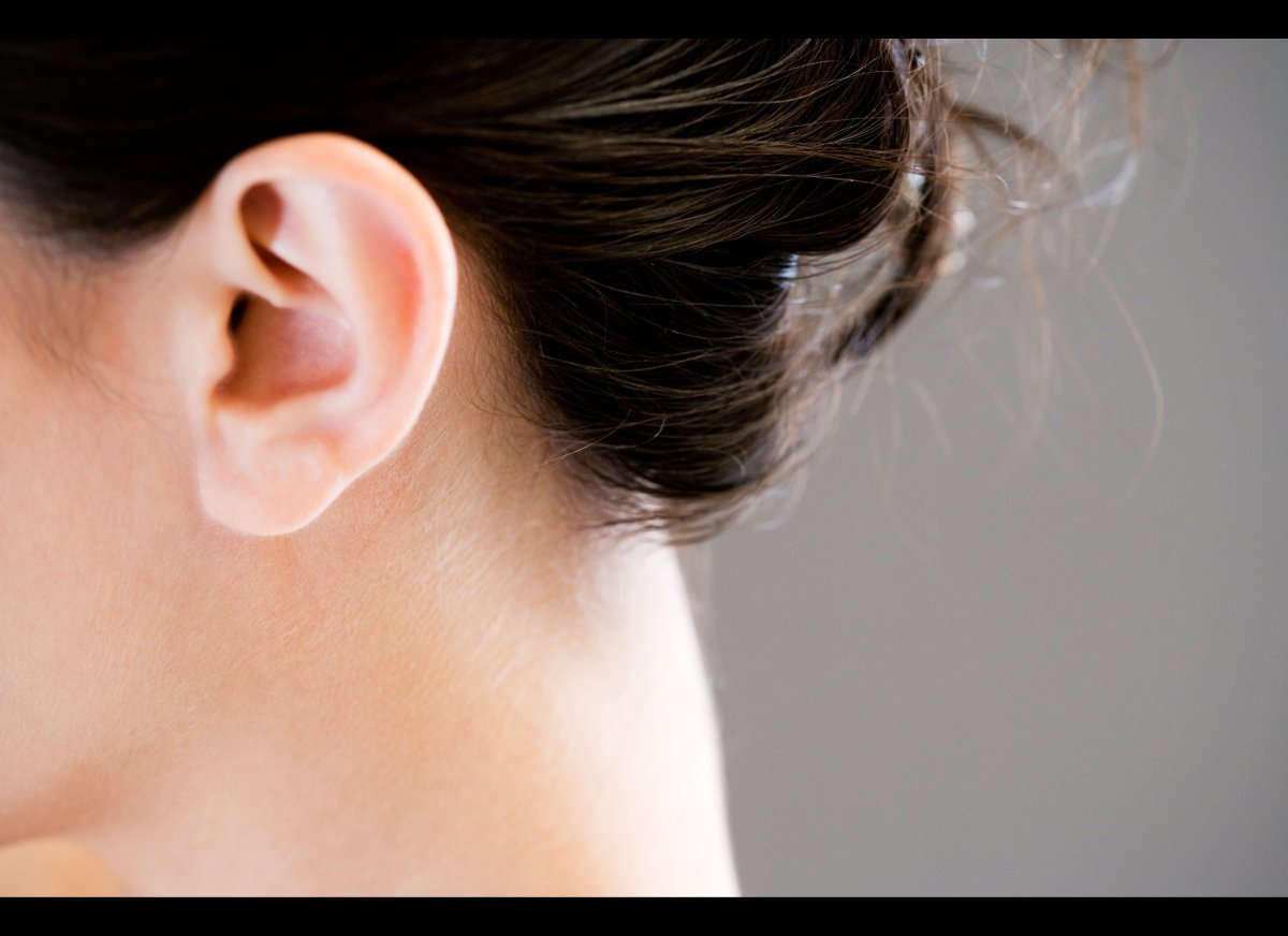 True or false: Two parents with dry earwax can have a child with wet earwax.  Answer: False Unlike most of the human cha