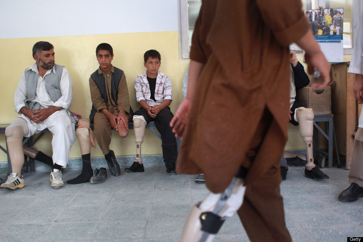 Afghan war amputees and children await treatment at the International Committee of the Red Cross (ICRC), orthopedic center on