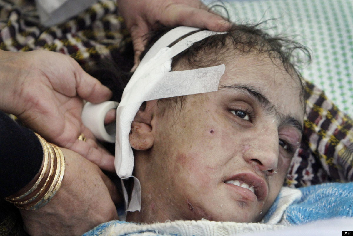 In this Saturday, Jan. 7, 2012, file photo, Afghan doctors, unseen, dress the tortured ear of Sahar Gul, a 15-year-old at a h