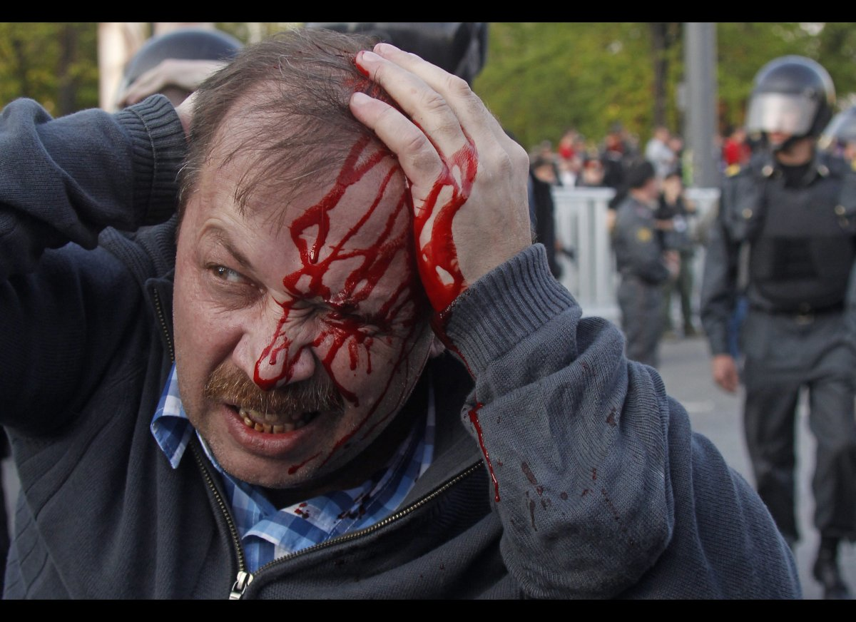 A wounded opposition protester winces in pain during a rally in Moscow on Sunday, May 6, 2012. Riot police in Moscow have beg