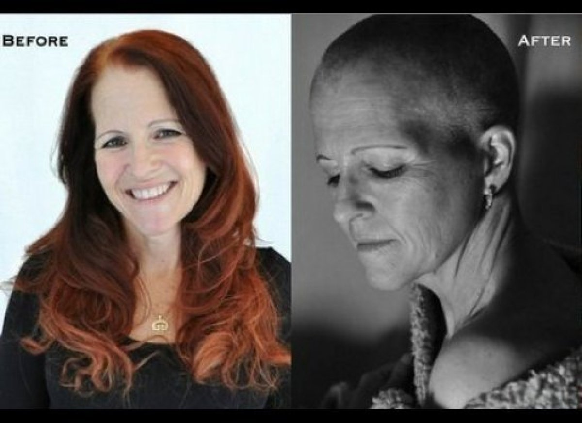 <strong>Jenny Rie Van der Linden in winter 2011 <em>(left) </em>and after chemotherapy in fall 2011.</strong>