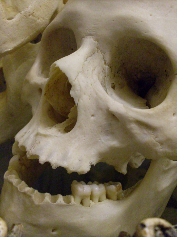 """Skulls and other humans bones are now off limits to Etsy shoppers. Sorry!   Photo by Flickr user <a href=""""http://www.flickr"""