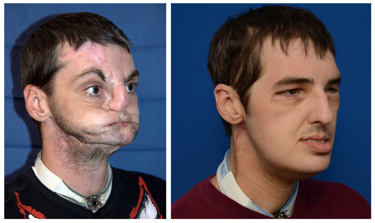In photos provided by the University of Maryland Medical Center, face transplant recipient Richard Lee Norris, the recipient