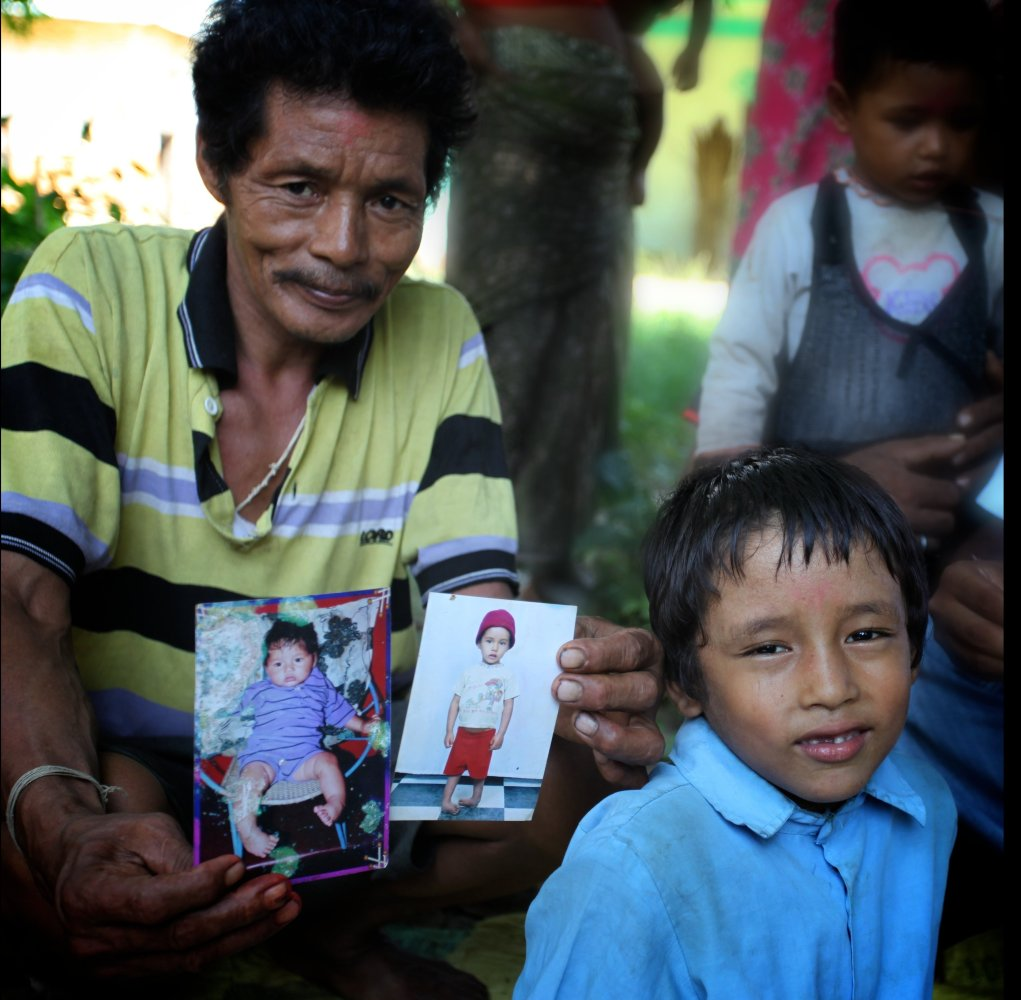 Bikram Malla, 7, was  born with clubfoot. Initially shy and ashamed, he wouldn't leave his house. Today, thanks to a correcti