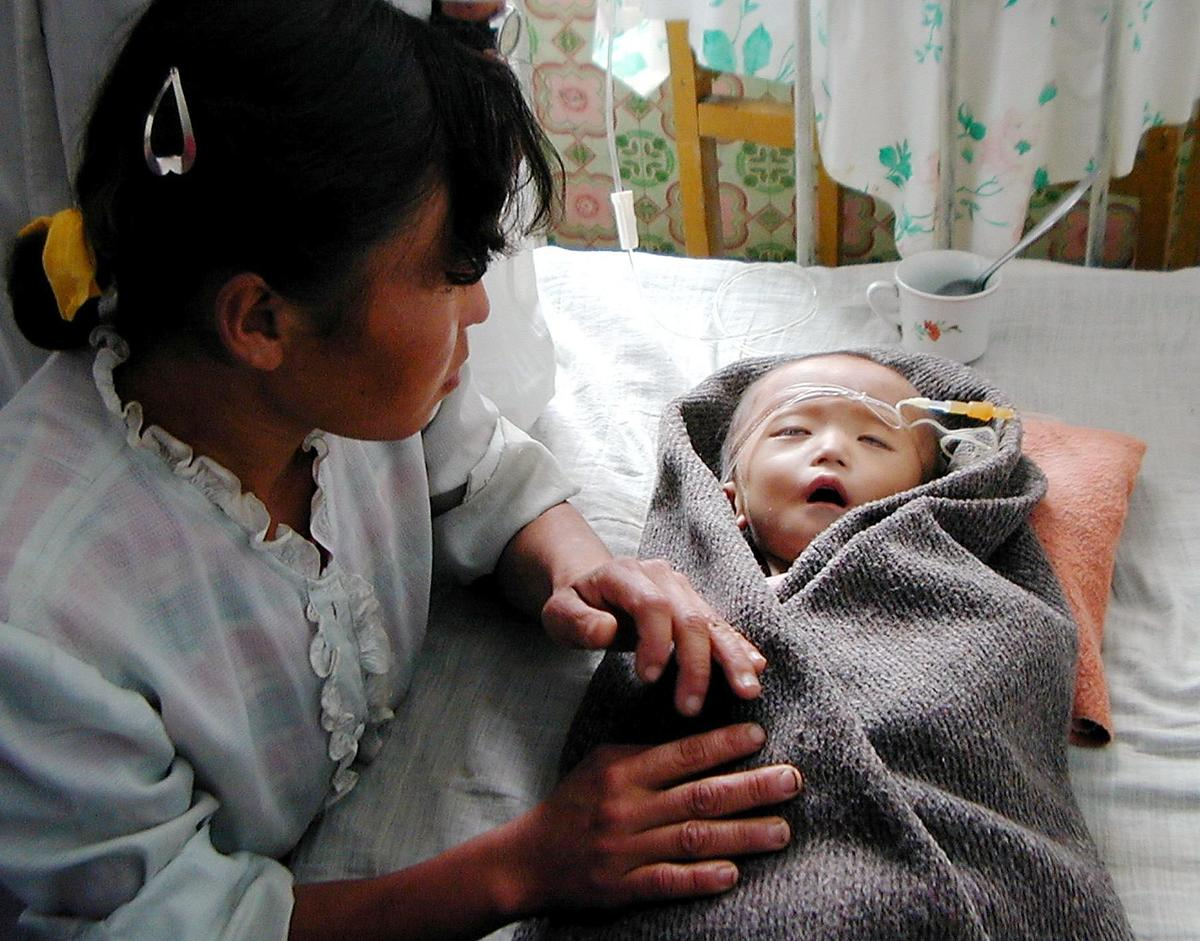 Caption: A severely malnourished North Korean boy, 17-month-old Pak Un Hyok, receives treatment at the government-run Taedong
