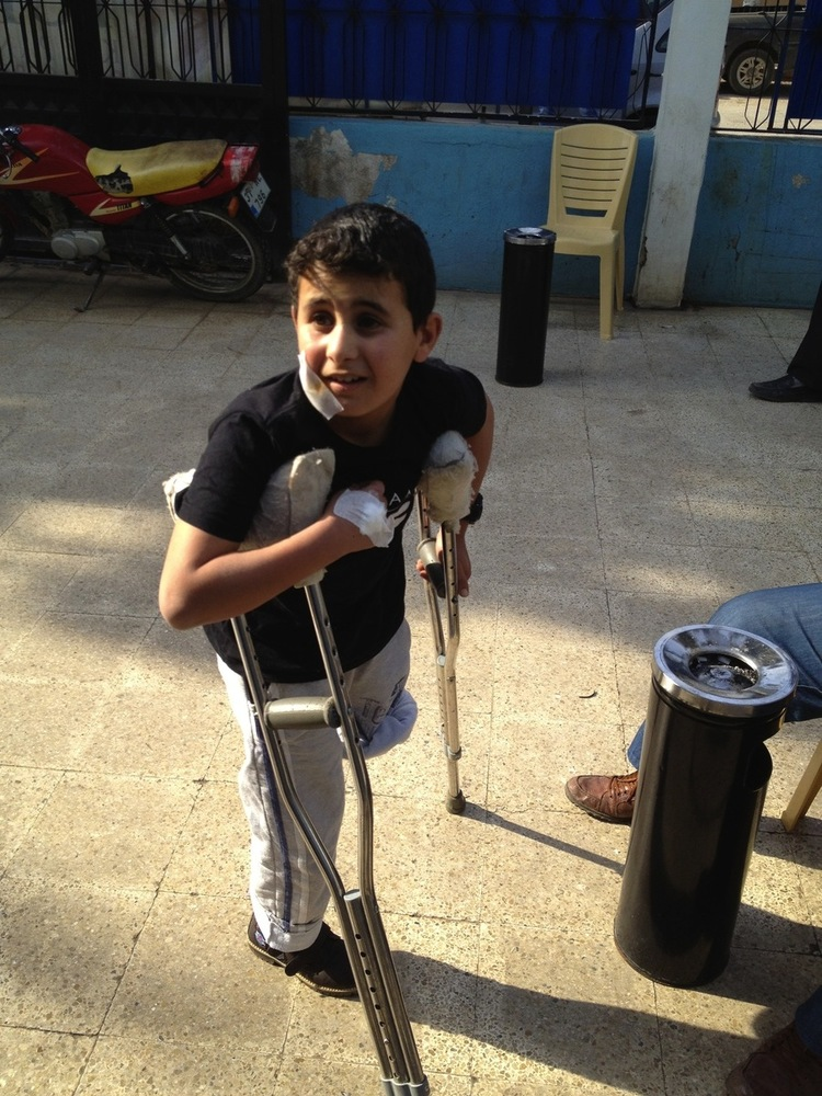 Malik, 10, a Syrian boy from the countryside of Hama, Syria, lost his leg four months ago from the shelling from a government
