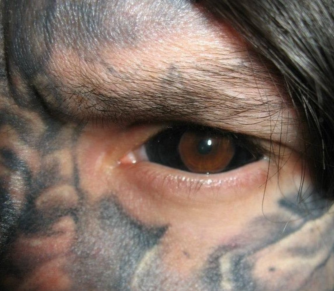 Russ Injected Black Dye Into The Sclera To Achieve This Look