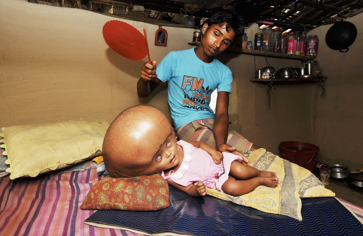 Indian daily labourer, Abdul Rahman, 26, fans his daughter, Roona Begum, who was born with the condition Hydrocephalus, a bui