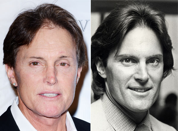 The Olympic gold medalist and husband of momager Kris Jenner has had a nose job and a couple facelifts.