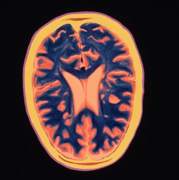 Multiple Sclerosis, or MS, is a disease of the central nervous system that affects more than 2.1 people worldwide, the <a hre