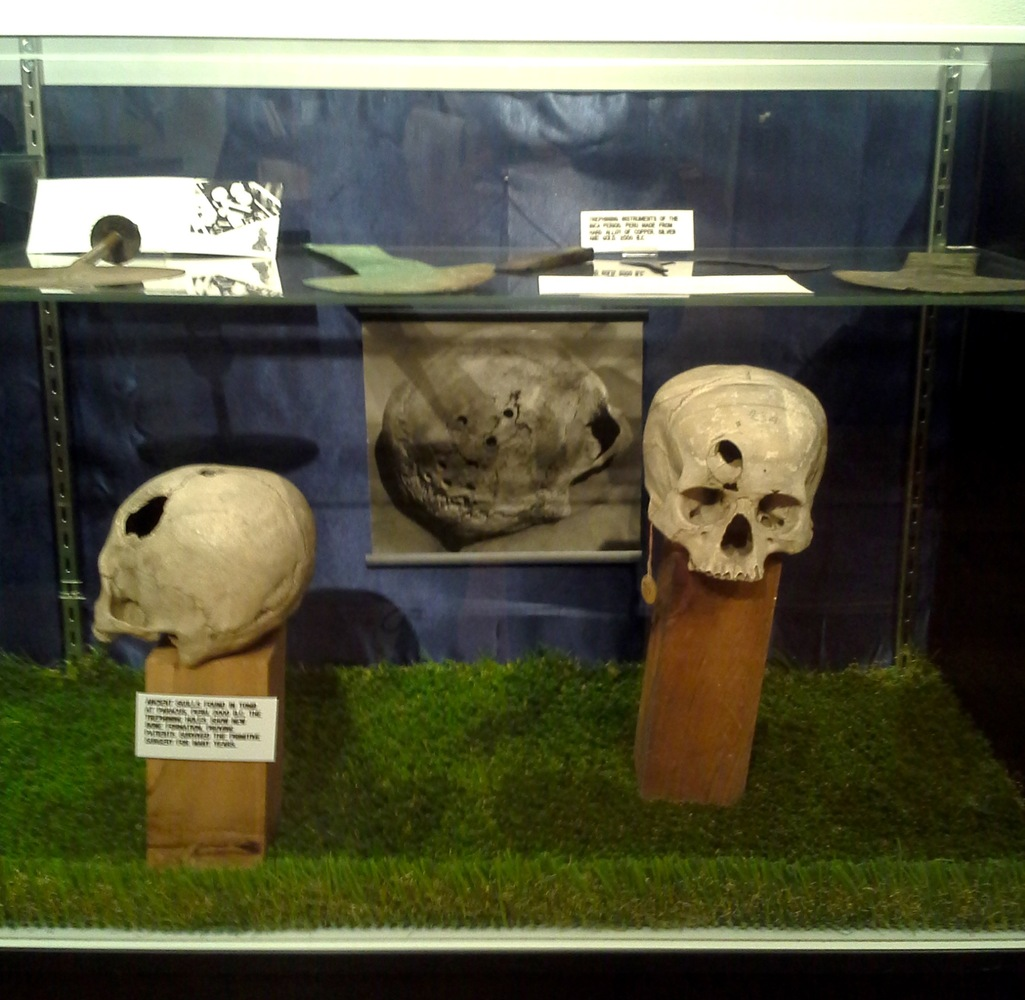 The ancient practice of trephining -- i.e. drilling holes in -- skulls as practiced in prehistoric Peru was the inspiration f