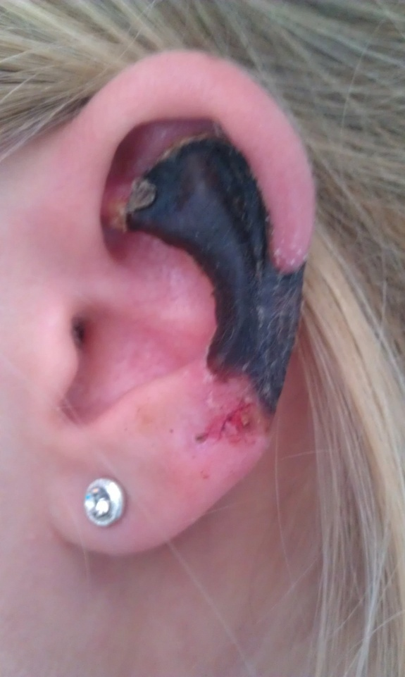The ear of a woman bitten by a Mediterranean recluse. The black tissue is dead, or necrotic.