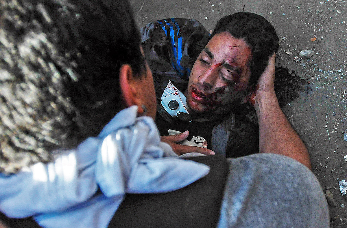 Student Bassil DaCosta is helped during an opposition demo against the government of Venezuelan President Nicolas Maduro, in