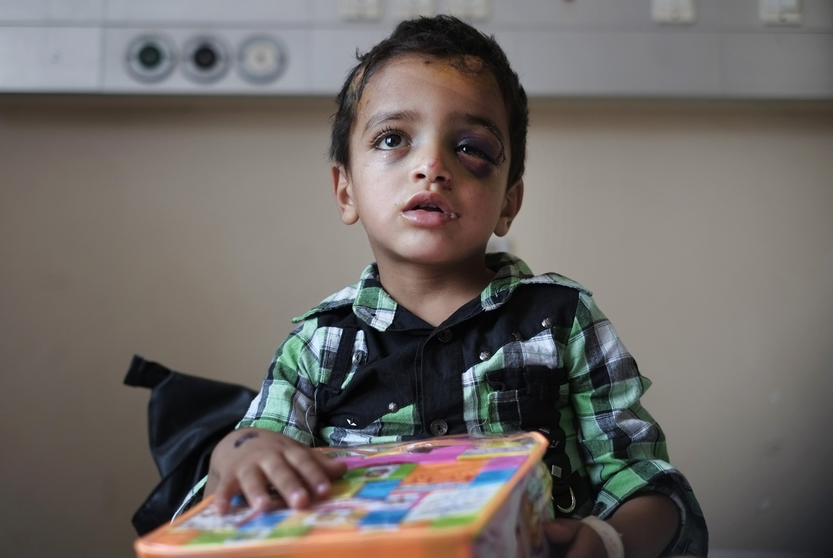 Marwan Hassanein, 4, receives a present for the Eid al-Fitr holiday, at the Shifa hospital in Gaza City, where he is hospital