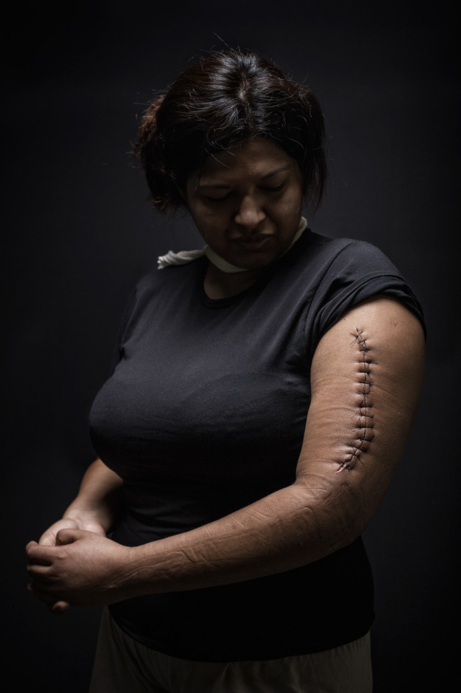 """Mariana, 29 years old, Honduras. She was assaulted during her crossing as an undocumented person through Mexico, with the in"