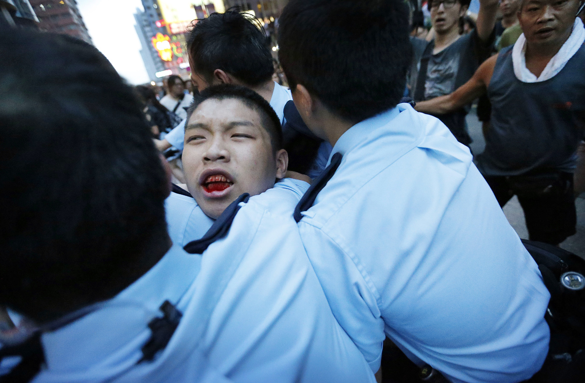A student protester is injured after being pulled off and hit by residents and pro-Beijing supporters while local police are