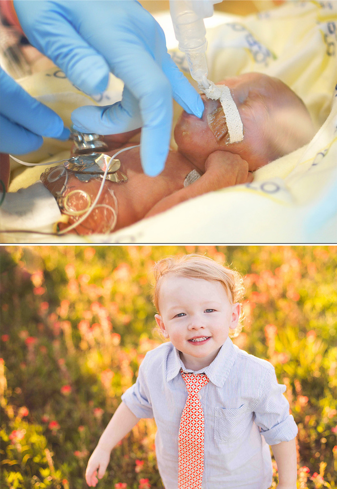 Baby Born At 25 Weeks: Meet 51 Babies Who Were Born Too Soon -- And See How Far
