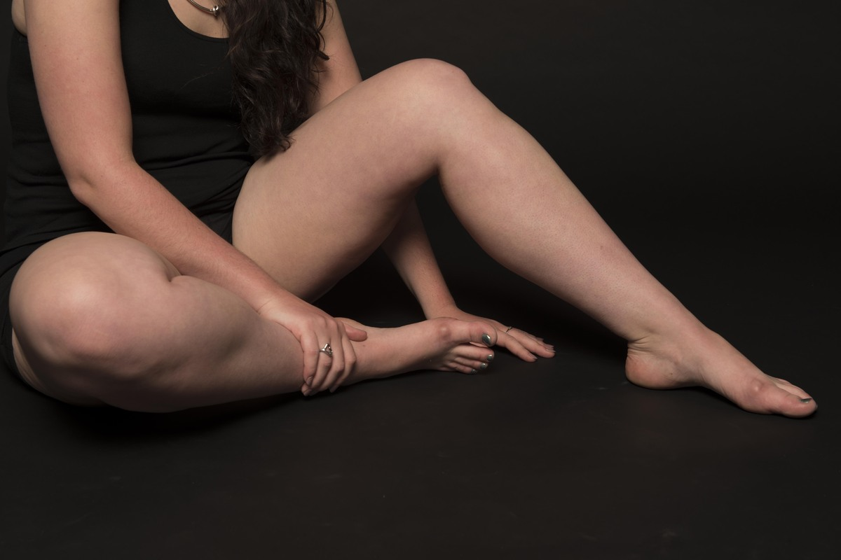 25 women bare their gloriously unretouched thighs -- and describe