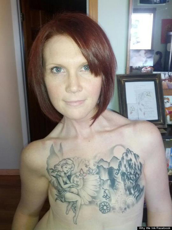 kelly davidson mastectomy photo