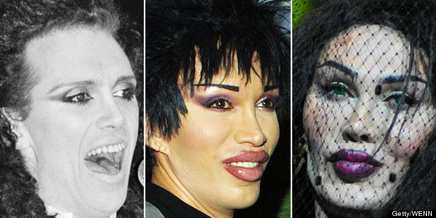 Pete Burns Surgery The Changing Face Of The Dead Or Alive