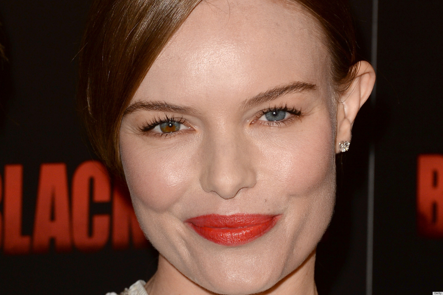 A List Of Celebrities With Two Colored Eyes Heterochromia - HD1536×1024