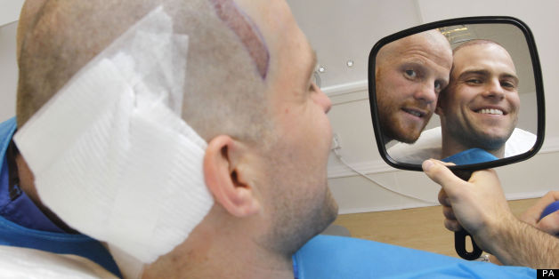 The Cowan brothers made hair transplant history