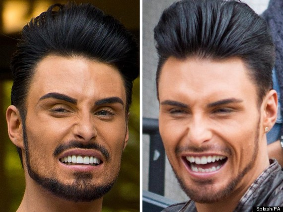 rylan clark teeth