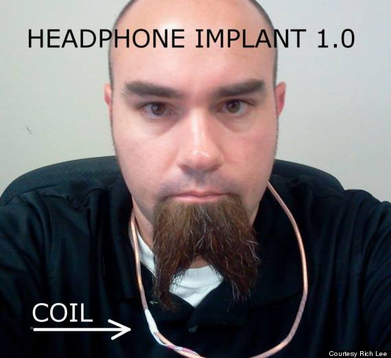 earbud implant