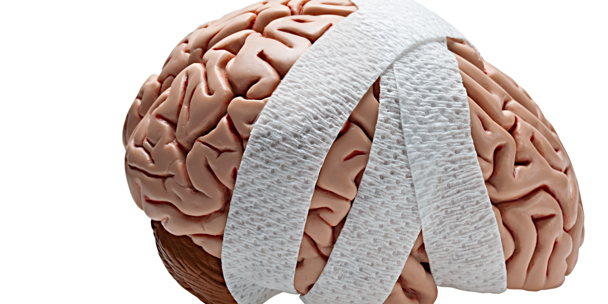 head trauma a leading cause of brain damage Traumatic brain injury, often shortened to tbi, occurs when a sudden, external trauma causes damage to the brain the centers for disease control and prevention determined that falls were the leading cause yet another study found that experiencing depressive symptoms after a head injury.