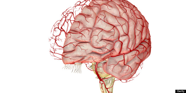 Migraines Linked With Abnormal Blood Vessel Structure In The Brain