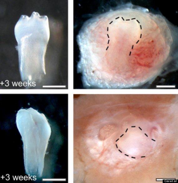 urine stem cells teeth