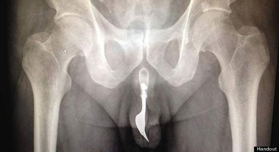 man fork urethra