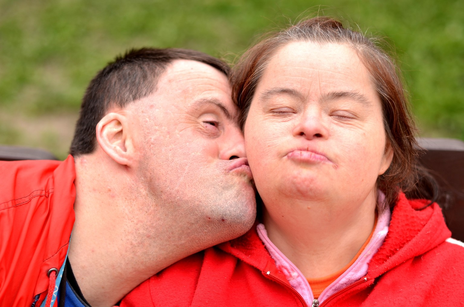 down syndrom Because while the chances of giving birth in the uk to a baby with down's syndrome is approximately one in 1,000, the odds of giving birth to identical twins with the condition is one in a million.