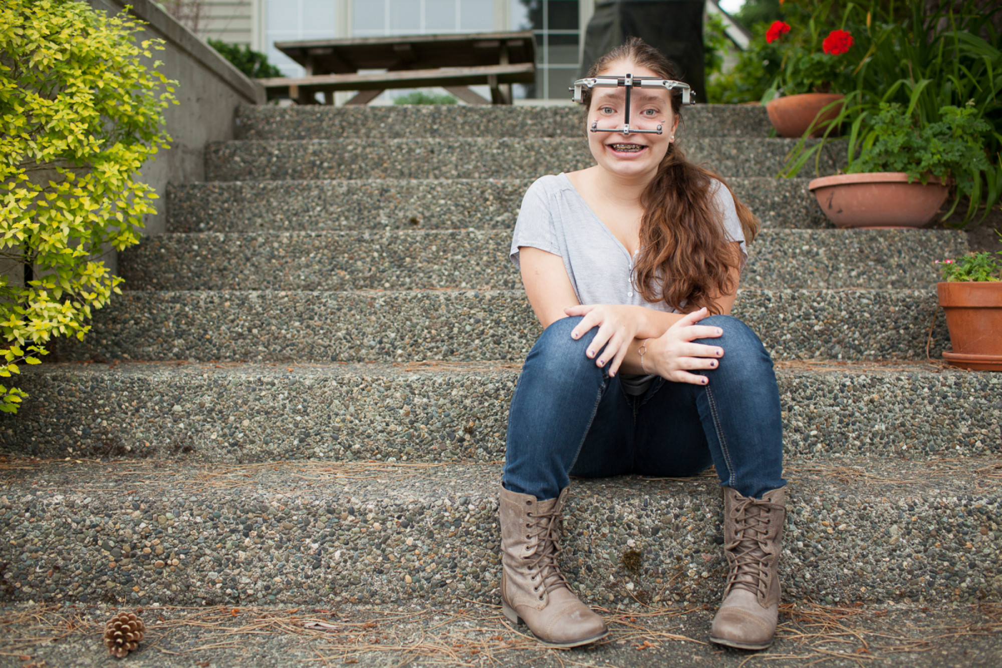 treacher collins syndrome essay