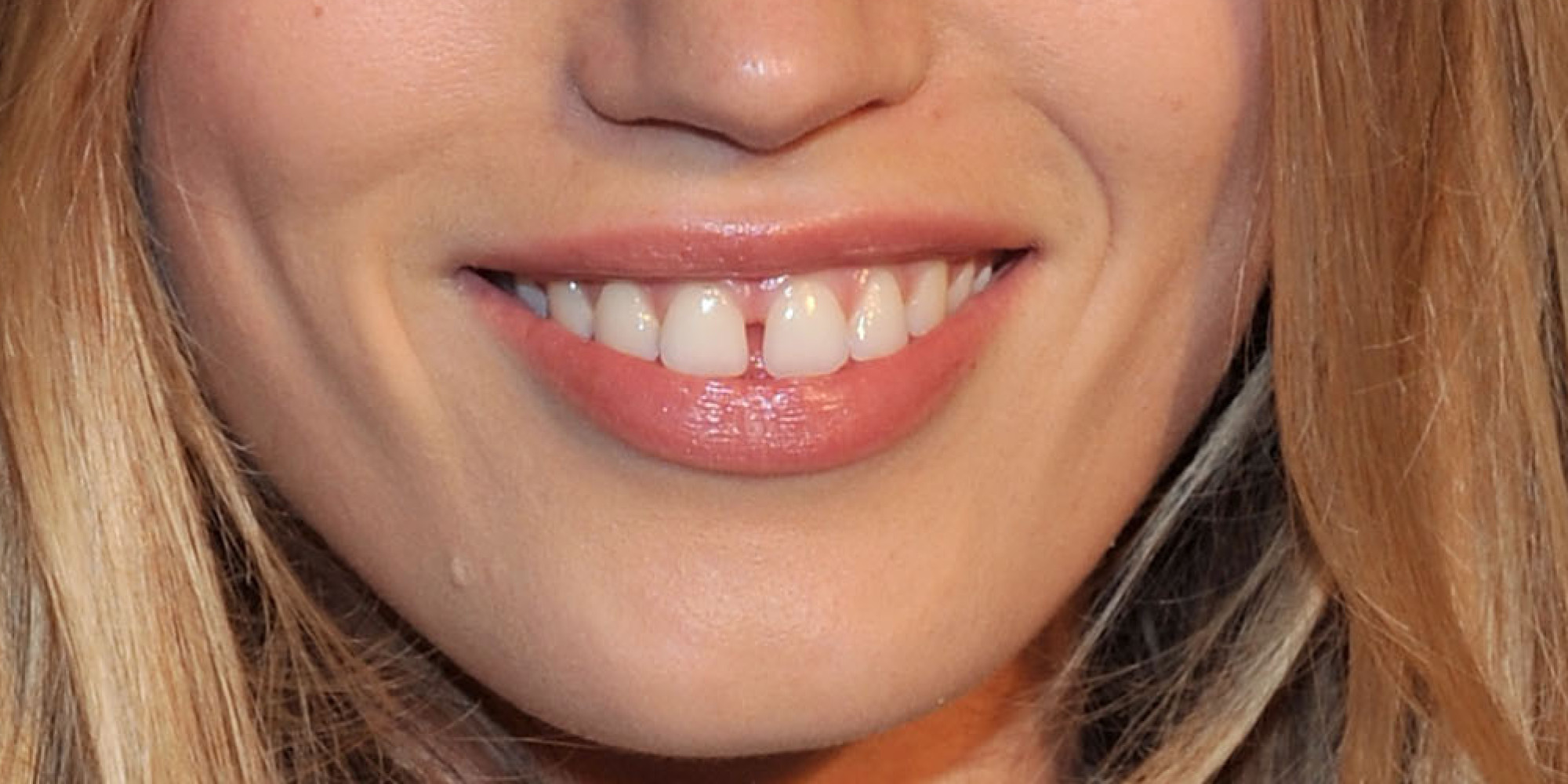 Щель между зубов фото девушек