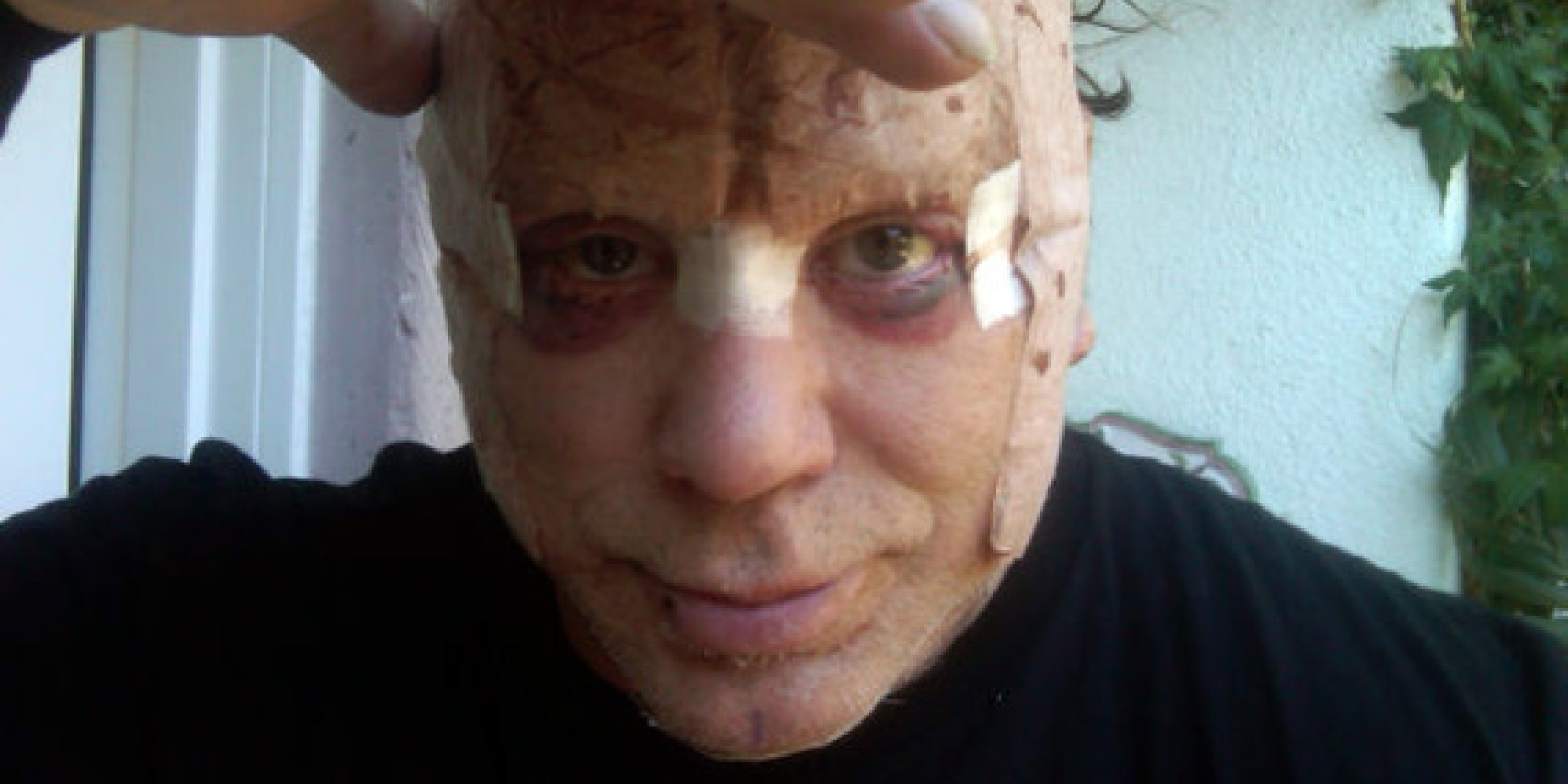 Mickey Rourke Plastic Surgery: Actor Looks Gruesome In ...
