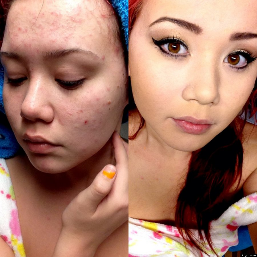 Image result for acne before and after makeup