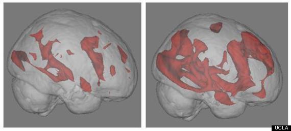 brain activity internet