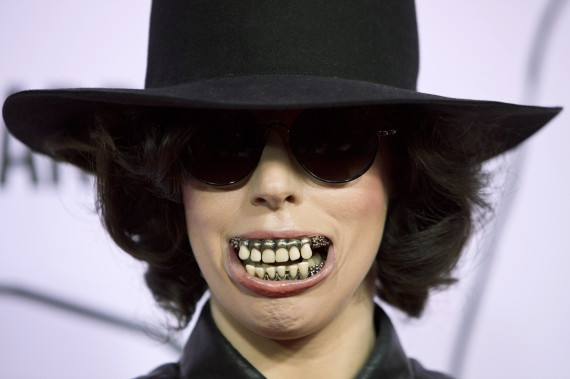 lady gaga dentier