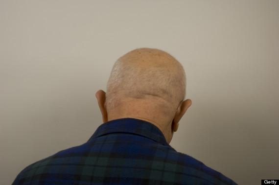baldness