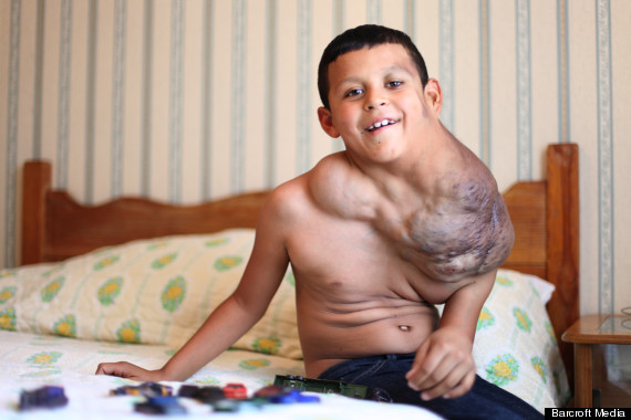 viagra tumour