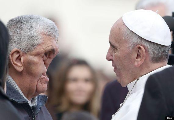pope and disfigured man