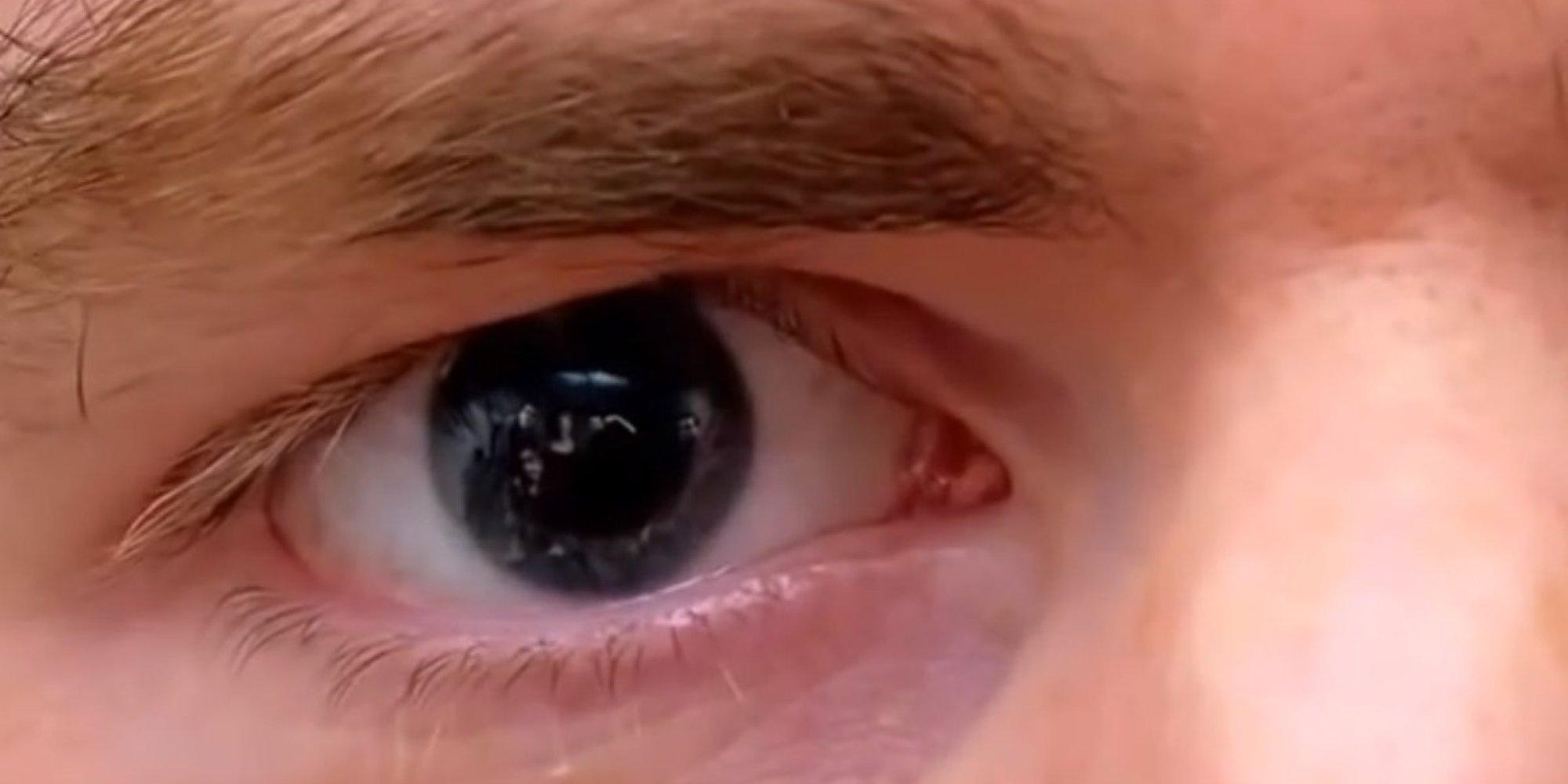 Talking Tom Man In Eyes