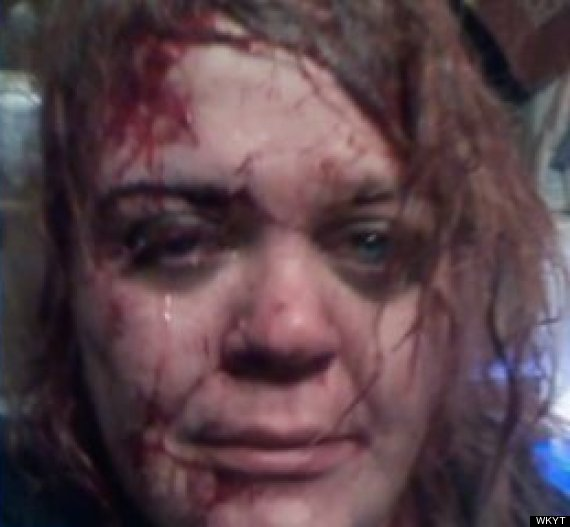 Facebook Selfie 'Saves Battered Woman's Life' (PICTURE)