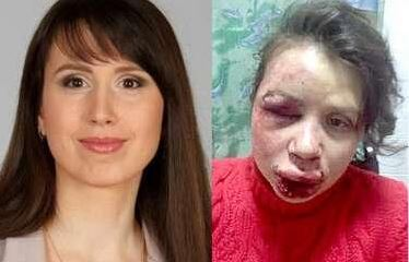 ukraine protester beating