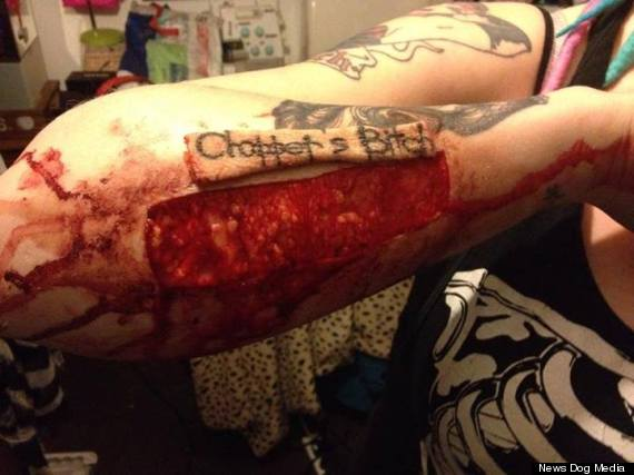 torz reynolds tattoo removed