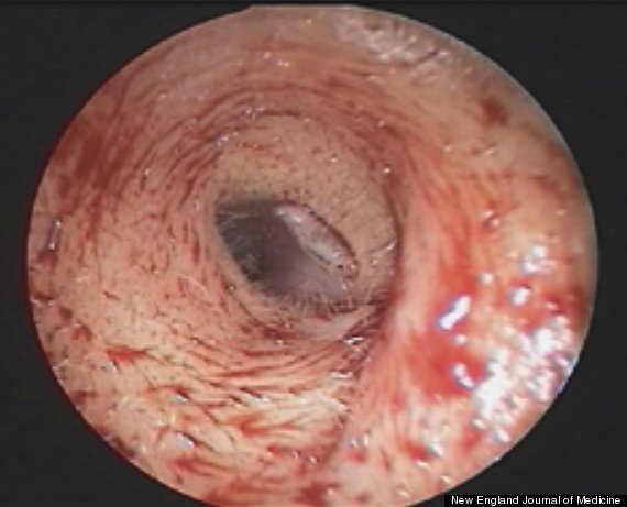 maggot in ear