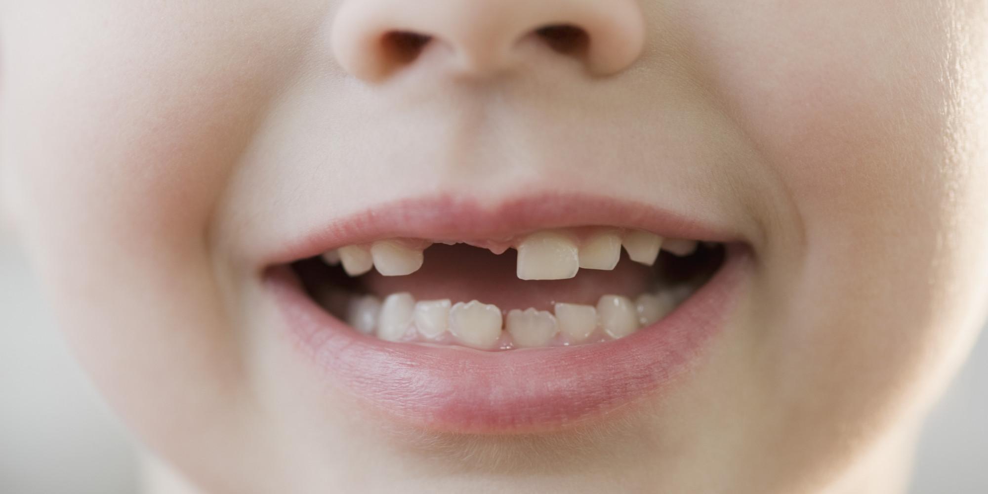 Что делать, когда у ребенка зубы растут неправильно, если они кривые