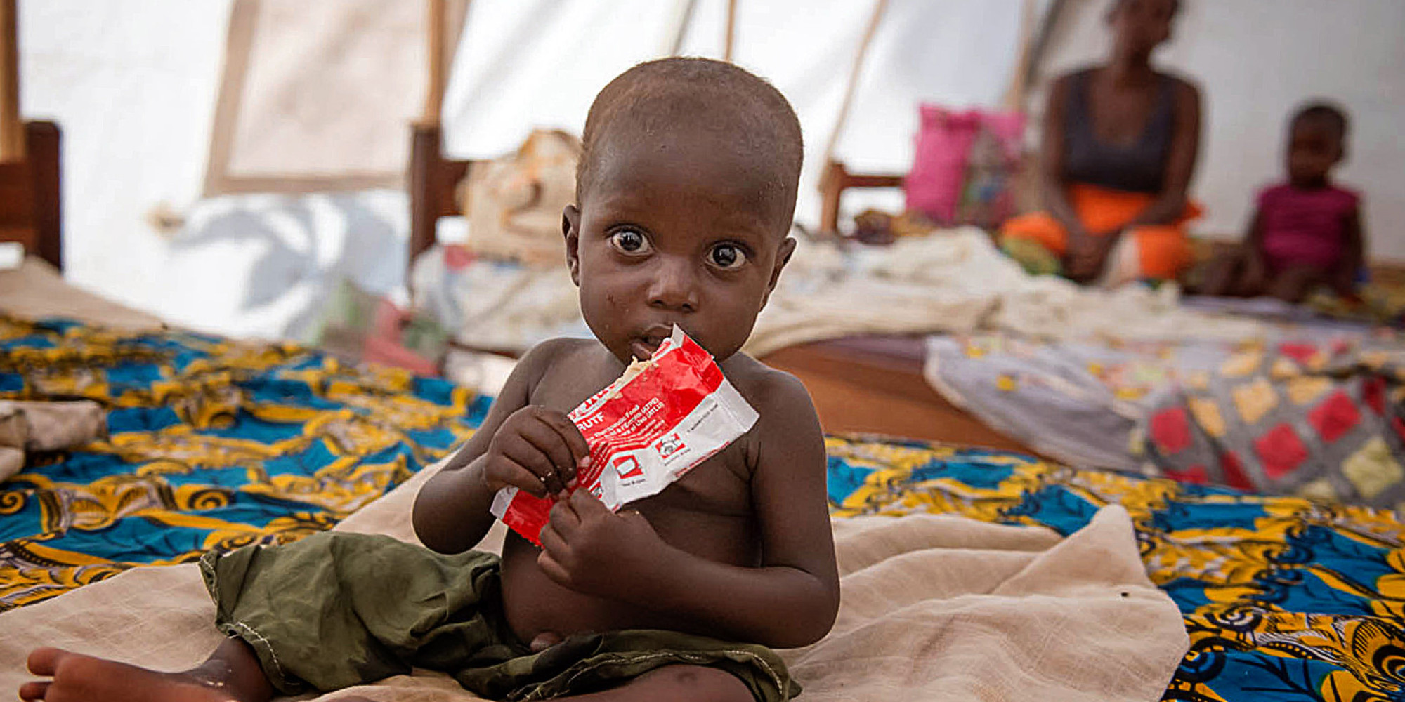 "africa malnutrition Africa page goal two of the sustainable development goals, developed in 2016, strives for ""zero hunger"" by 2030 unfortunately, hunger and malnutrition remain a large barrier of development in many regions, including africa."